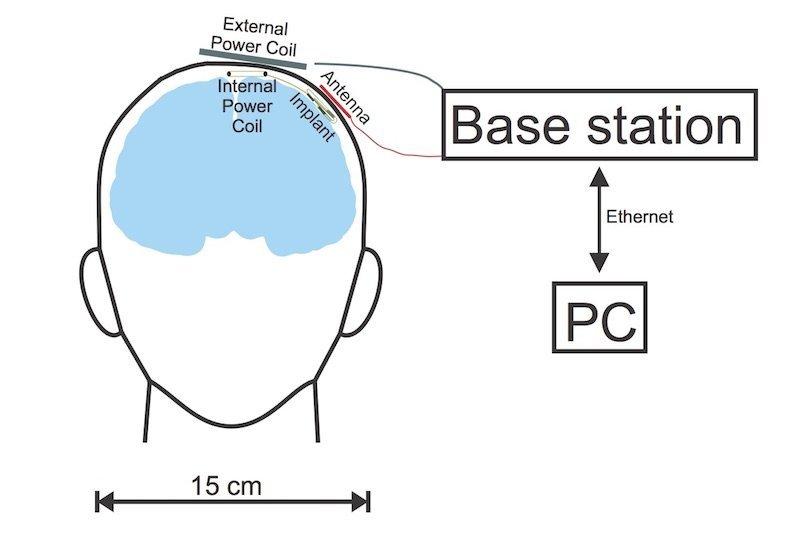 Open ResearchBremer Hirnforscher publizieren Neuroimplantat als Open Hardware