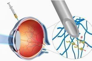 Nanoroboter dringen ins Auge vor